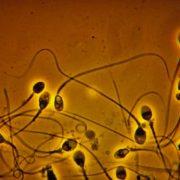Sperme marron et sang de le sperme : faut-il s'inquiéter ?