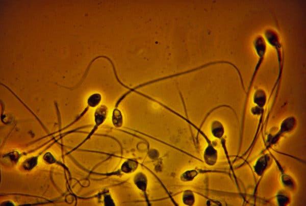 Mon sperme est marron, est-ce grave et comment y remédier ?