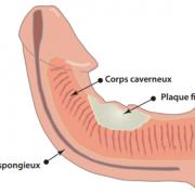 Penis tordu : causes, conséquences traitement à suivre quand on a un pénis courbé