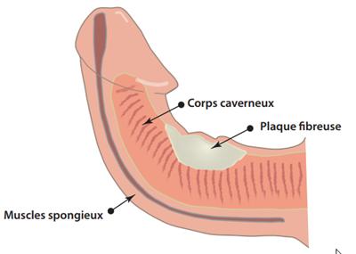 Penis courbé : causes, et traitements en cas verge tordue ou de maladie de Lapeyronie